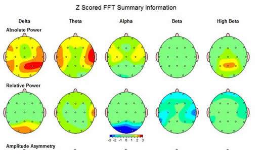 QEEG-Aufnahme. Diagnose Lernstörung, ADHS